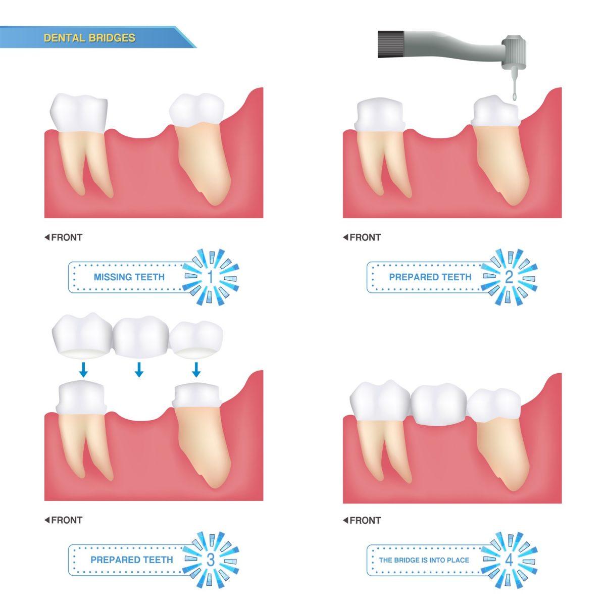 Dental Bridges in Fort McMurray - Timberlea Dental Clinic